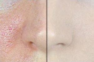 Comment faire disparaître les pores