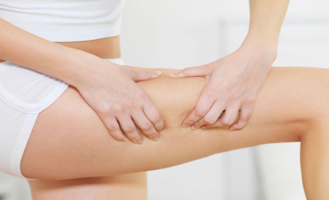 trucs et astuces contre la cellulite